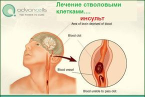 stem cell therapy for stroke
